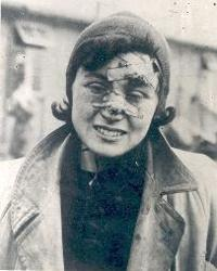 Photograph of a survivor, 1945 (D/DLI 7/404/70) - Copyright © Durham County Record Office.